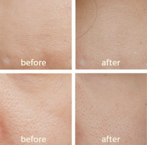 before after image of using Immortelle Reset for 7 days